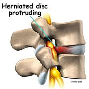 Herniated Disc needs Spinal Decompression