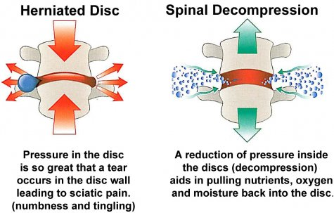 Image result for What is Spinal Decompression Therapy